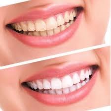 Blanchiment dentaire Sérénity Beauté